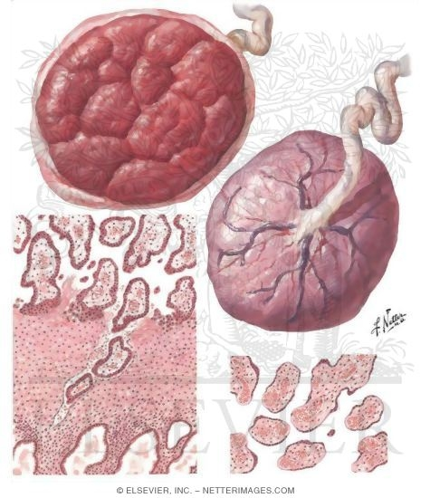 What should I do with my placenta?